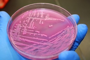 Vomit bug E.coli could produce diesel biofuel