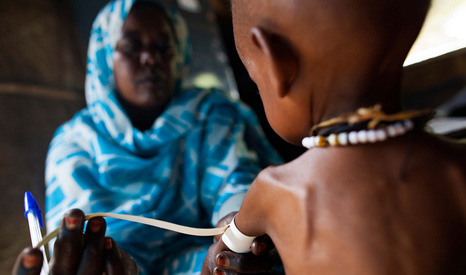 A nurse measures a malnourished child in Darfur (Pic: UNAMID)